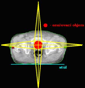 Centrální paprsky dvou na sebe kolmých protilehlých polí (AP/PA a LL)