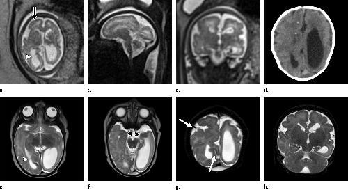 (A) axiální, (b) sagitální, a (c) koronální zobrazení plodu T2 váženými MR obrazy byly získány u 29 leté ženy s potvrzenou virovou infekcí Zika, kde byla původně viděl charakteristická vyrážka po 12 týdnech těhotenství. (D) axiální postnatální CT obrazu a (e-g), axiální a (h) koronální T2-vážené MR obrazy byly získány u jejího novorozence. MR Snímky plodu jsou pořízeny ve 34 týdnů (a-c)