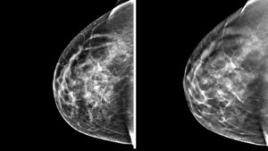A standard digital mammogram, left, compared to a 3-D tomosynthesis mammogram, right.
